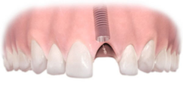 A dental implant installed