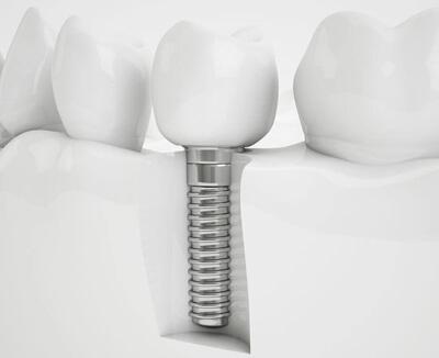 Advanced Implant Treatments