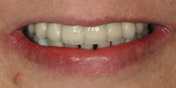 Dental implant bridge in place